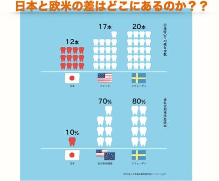 日本と欧米の差
